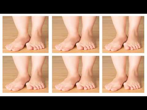how to get rid of bunions at home without surgery -  prevent bunions naturally without surgery