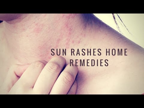 Home remedies for sunburn,sun blisters and rashes