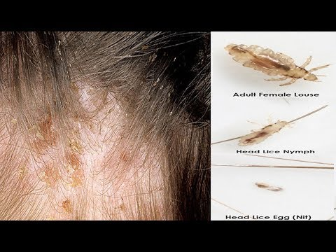 How to get rid of Head Lice Permanently |  How to Heal Head Lice Naturally
