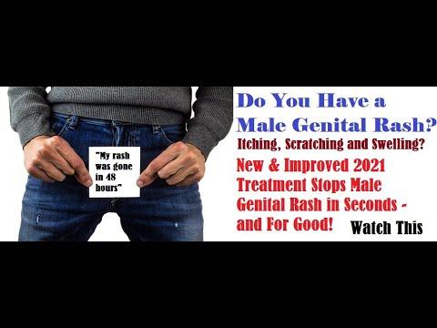 Male Genital Rash? Watch This