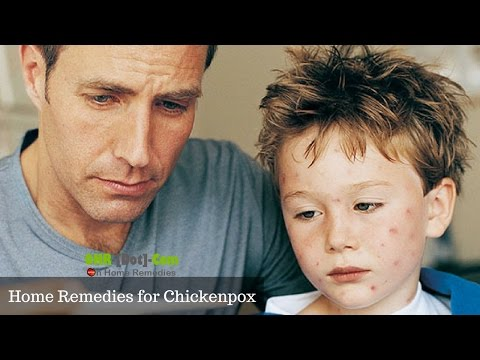 8 Effective Home Remedies for Chickenpox