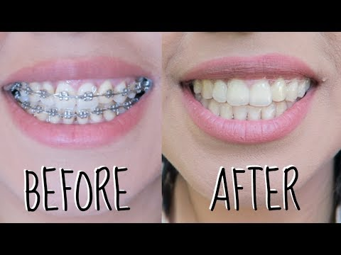BRACES BEFORE AND AFTER | TEETH BEFORE AND AFTER BRACES