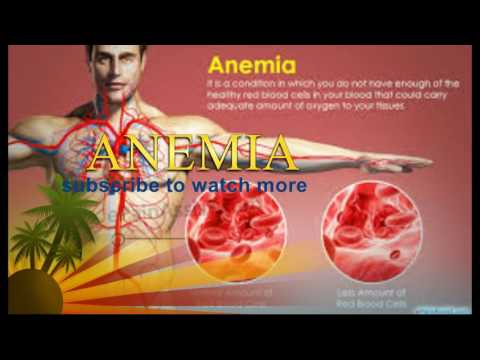 How to cure Anemia for week