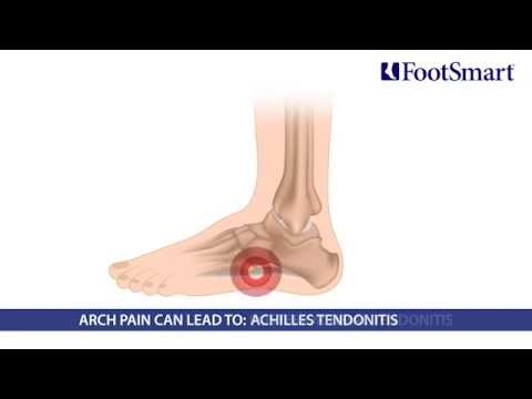 What is Arch Pain? Symptoms, Prevention, and Treatment
