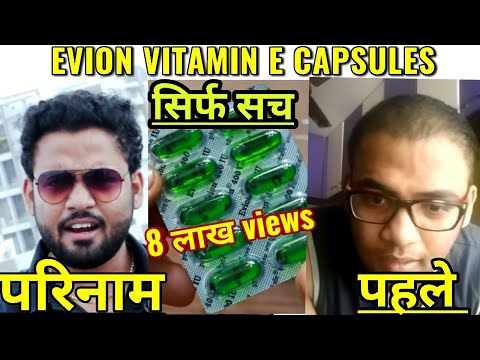 10 Capsules in 20 Rs - E Vitamin on Hair Transplant - Evion 400 Capsule - Benefits - Side Effects