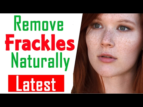 11 Ways to Remove Frackles Naturally with Home Remedies | How to Remove Freckles
