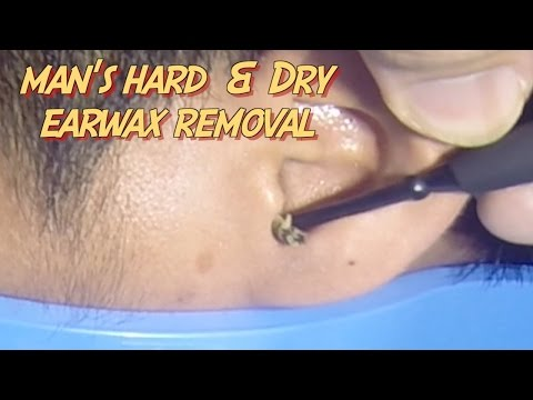 Man's Hard & Dry Earwax Removal