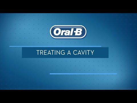 Cavities Treatment: Ways to Treat Cavities   Oral-B
