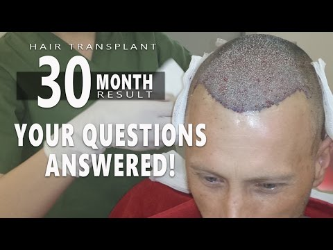 FUE Hair Transplant 30 Month Final Result – Your questions answered – Health Travel International