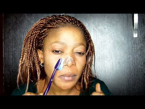 REMOVE WHITE HEADS/BLACK HEADS AT HOME IN  2 MIN WITH THIS NATURAL RECIPE