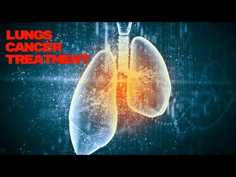 LUNGS CANCER TREATMENT