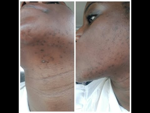 Black spots on face, facial hair, skin journey
