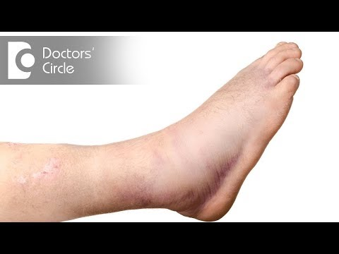 Pain & Swelling after Ankle Surgery : Reasons, Recovery time & Ways to reduce- Dr. Gururaj S Puranik
