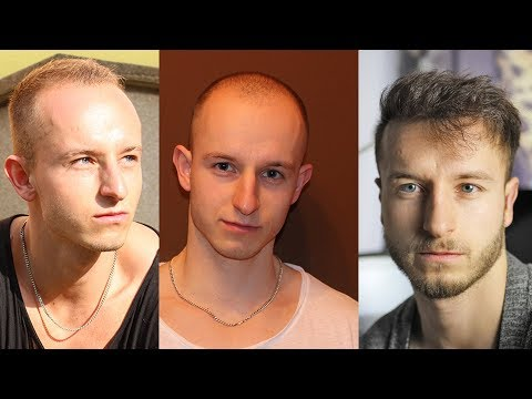 My Hair Loss Story & Going Bald at a Young Age, Prevention, Tips, Video Footage