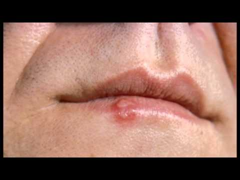 home remedy for cold sore inside mouth
