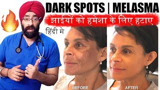 Permanently Cure DARK SPOTS, झाइयां, MELASMA, HYPERPIGMENTATION or BLACK MARKS (HINDI) Dr.Education