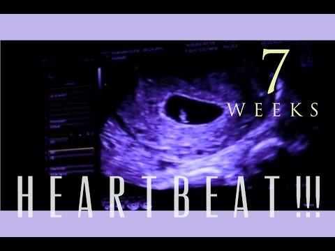 IVF Pregnancy: 7 WEEKS + HEARTBEAT!!!