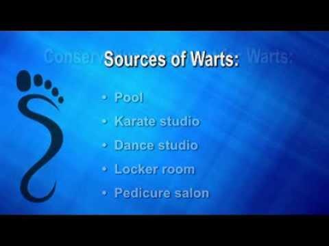 Foot Wart -  Buckingham, Doylestown, PA - Podiatrist Ken Lefkowitz, DPM - Plantar Wart