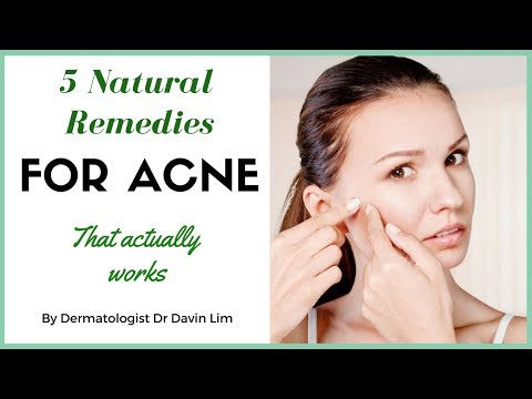 How to treat acne naturally - dermatologist explains