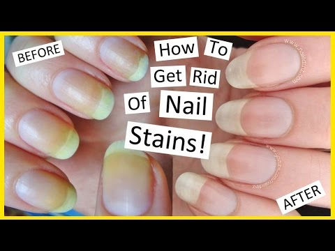 How To Remove Nail Polish Stains!