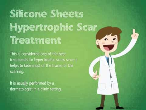 What Are Hypertrophic Scar Treatment Options