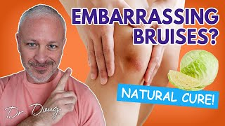 How To Get Rid Of Bruises Fast