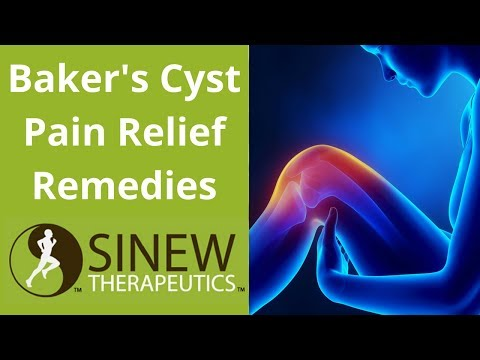 Bakers Cyst Pain Relief Remedies