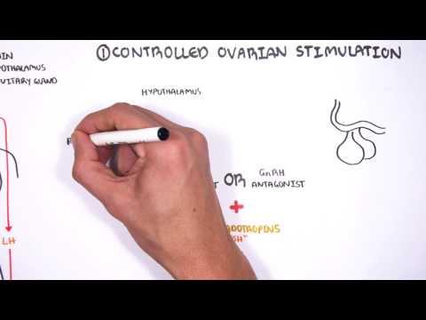 In Vitro Fertilization (IVF) - Overview