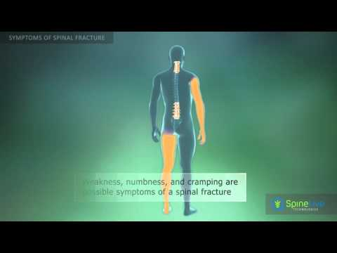 Spinal fracture. Symptoms