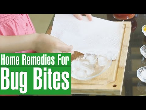 How To GET RID OF BED BUG BITES On Your Skin | Home Remedies