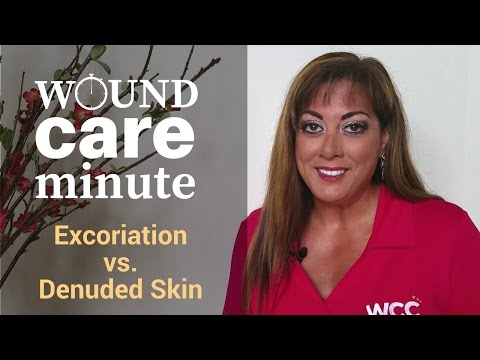 What's the Difference Between Excoriation and Denuded Skin?