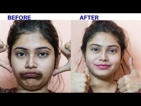 लिप्स क कालापन से छुटकारा  | How To Remove Black spots on Lips , Black patcheS , Around Mouth