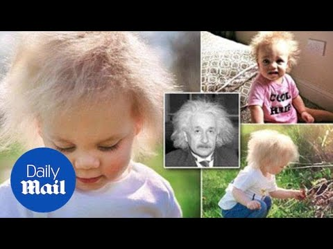 Baby girl has rare condition that makes hair white - Daily Mail