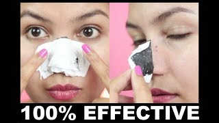 Remove Tons Of Blackheads & Whiteheads at Home/DIY  NOSE  STRIPS/ 100% effective