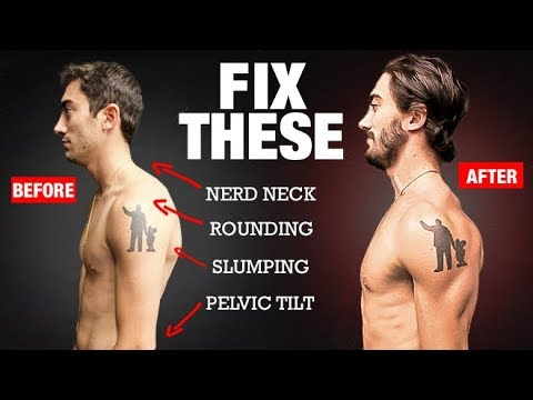 How to Fix Your Posture in 4 Moves! (PERMANENTLY)