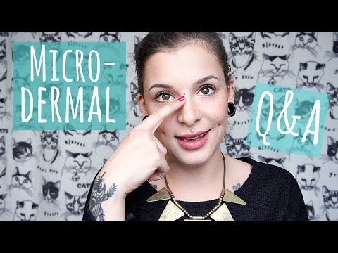 Q&A || About my Bridge Microdermal!