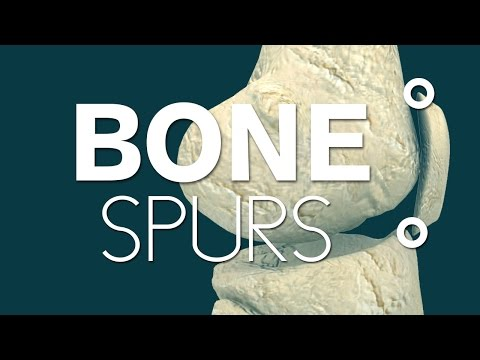 What causes bone spurs in knees?