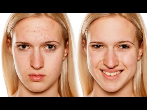 Homemade Remedies for Pimples - 4 Overnight Pimples Remedies