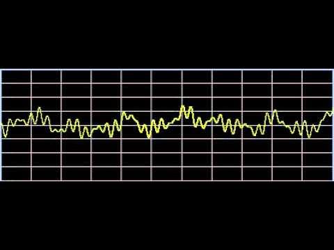 Celiac Disease - Rife Frequencies