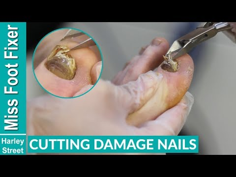 CUTTING OF A THICK DAMAGE TOENAIL BY MISS FOOT FIXER MARION YAU
