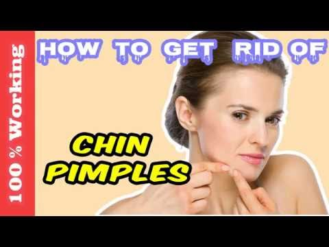 How To Get Rid Of Pimples On Chin Overnight - Fast - Home Remedies - Blackheads - Acne - Remove
