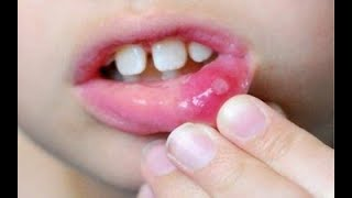 How To Get Rid Of Canker Sores In Mouth Tongue Lips Fast Overnight