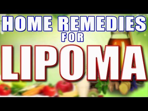 Home Remedies For Lipoma II अत्यधिक वसा के उपचार के लिए घरेलु नुस्खे II