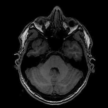 my brain (mri scan)