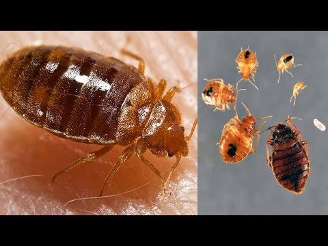 Bed Bugs Killing Natural Remedies | How To Get Rid of Bed Bugs Infestation Fast