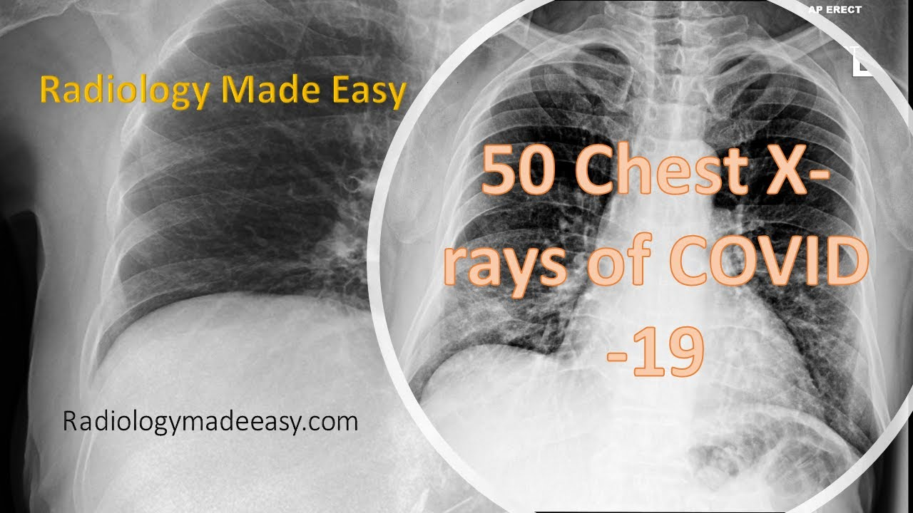 50 Chest X-rays of COVID-19 patients with daily progression   Corona Xray Features
