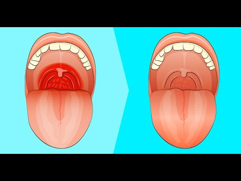 how to get rid of strep throat Fast | Home remedy