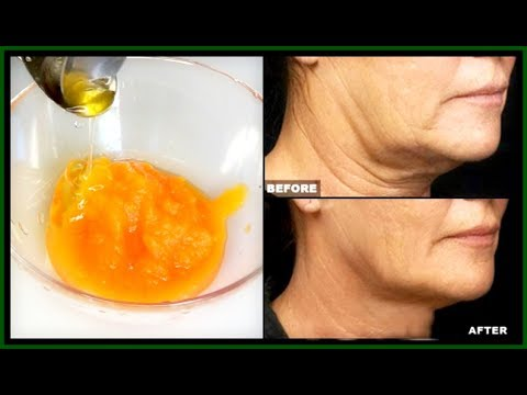 GET RID OF SAGGING JAWLINE, SAGGING NECKLINE + WRINKLES ON THE JAWLINE AND NECK |Khichi Beauty
