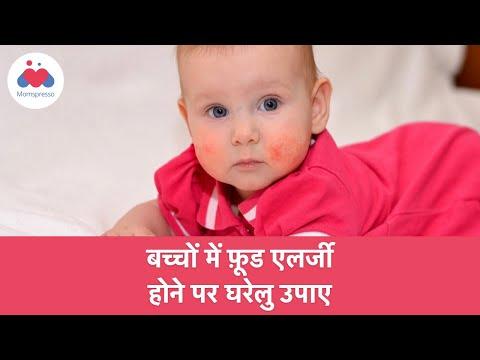 बच्चों में फ़ूड एलर्जी होने पर घरेलु उपाए | Food Allergies in Hindi
