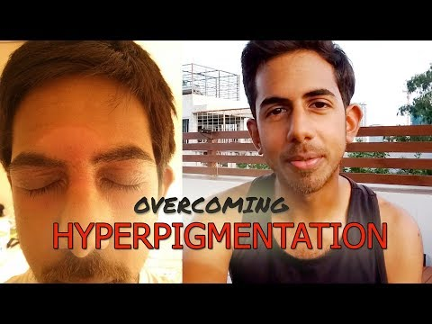 How to Deal with Post-Inflammatory Hyperpigmentation [PIH]
